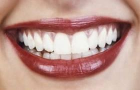 Γερά δόντια με καλή διατροφή