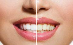 Λεύκανση δοντιών στο σπίτι με φυσικά προϊόντα