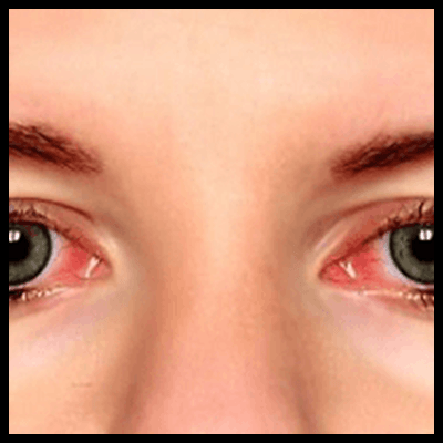 Problem-with-red-eyes-