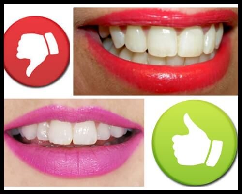 Problem with yellow teeth(1)-