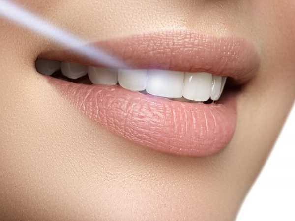Λεύκανση δοντιών για λαμπερό χαμόγελο!