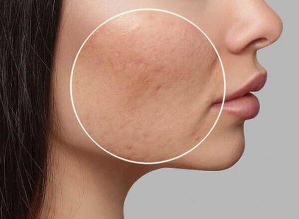 Φυσικές θεραπείες για ακμή και δέρμα με σπυράκια