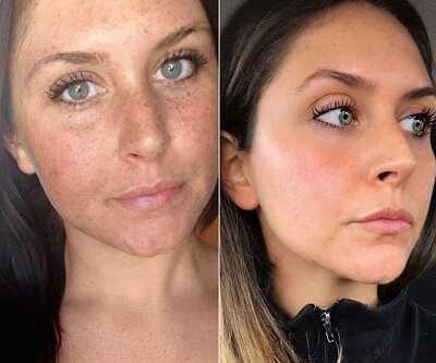3.Κόλπο μακιγιάζ για ομοιόμορφη επιδερμίδα, χωρίς φακίδες και ατέλειες