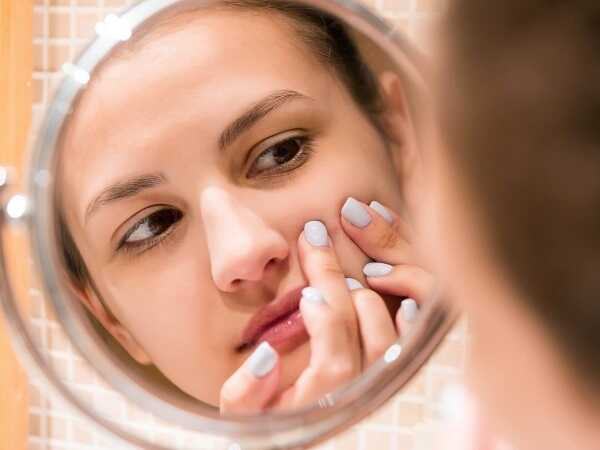 Λιπαρό δέρμα με ακμή: Φροντίδα με αρωματοθεραπεία