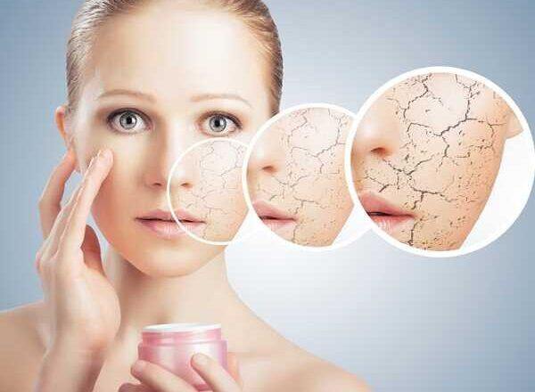 Έχεις ξηρό δέρμα; Μάθε τα χαρακτηριστικά του!